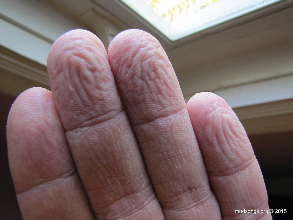 Wrinkled fingers after sweating in rubber gloves. (June 10, 2015.)